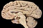 Борьба за социальный статус полезна для мозга